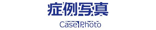 症例写真|Case Photo